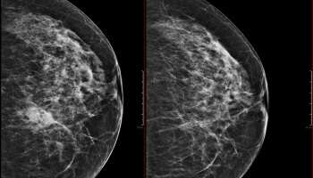 Mammogram – what is BI-RADS and what does it mean to me? – My Own Rad