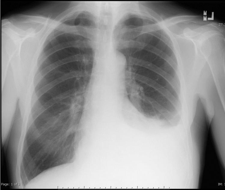 CXR PA - left effusion