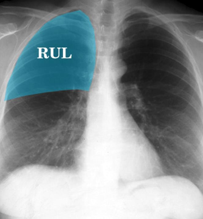 CXR - RUL