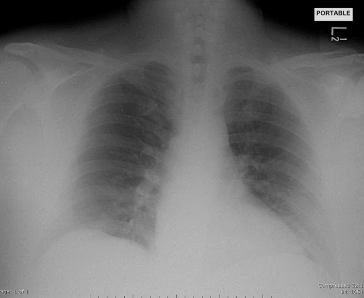 X-ray Chest Port