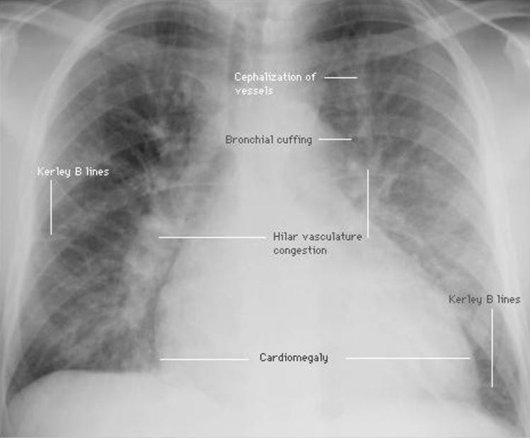 CXR - pulm int edema labeled